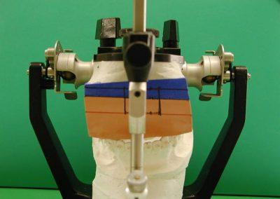 cirugia-ortonagtica-tecnica-del-cubo-14