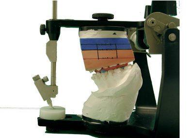 cirugia-ortonagtica-tecnica-del-cubo-7